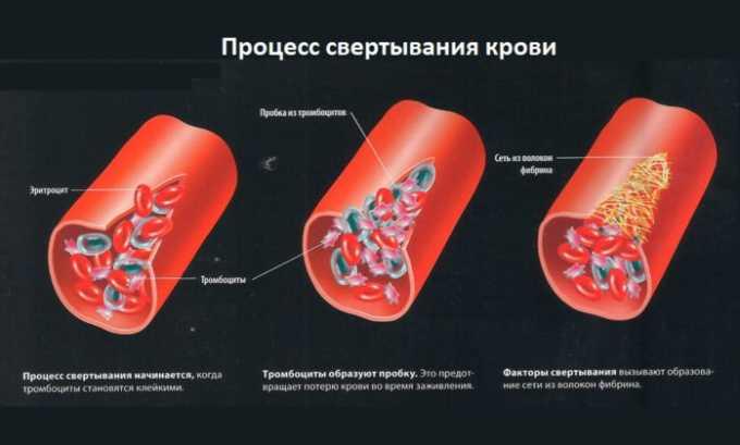 Необходимо соблюдать осторожность при назначении медикамента на фоне нарушения свертываемости крови