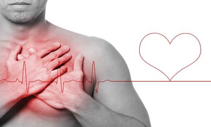 Боль в области сердца считается побочным действием Пентоксифиллина