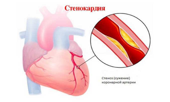 Тромбопол назначается при нестабильной стенокардии для снижения вероятности летального исхода