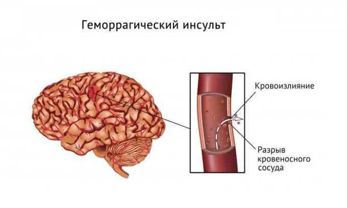 Медикамент противопоказан при геморрагическом инсульте