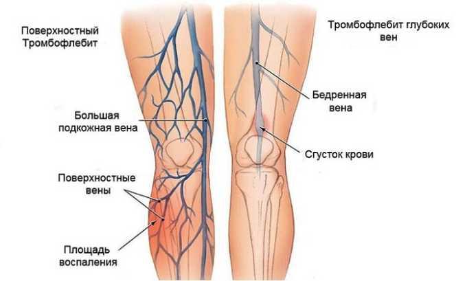 Также средство задействуют для профилактики тромбофлебита