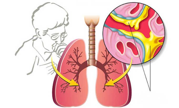 Лекарство не назначается, если в истории болезни имеется информация о бронхиальной астме