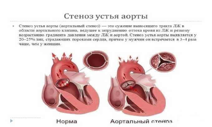 Препарат используют при стенозе аорты