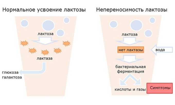 При синдроме лактозной непереносимости препарат не назначают