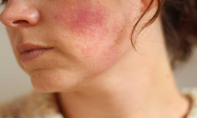 На гель Диофлан может развиваться аллергическая реакция