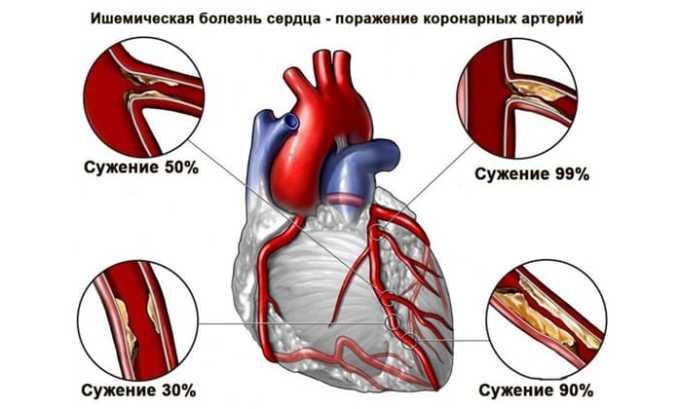 Тевастор показан при ишемической болезни сердца