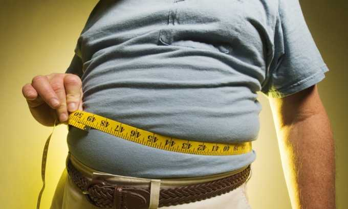 Лишний вес может спровоцировать варикоз