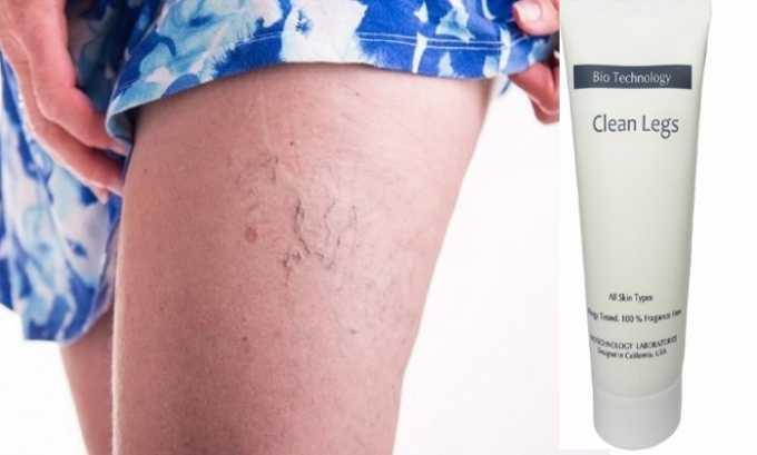 Медикамент показан при возникновении сосудистых звездочек на коже