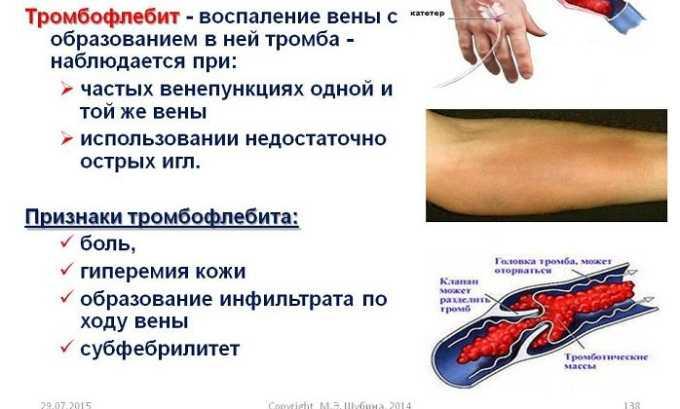 Гель эффективен в лечении тромбофлебита
