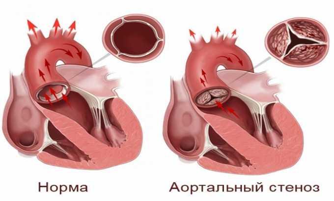 Принимать таблетки противопоказано, если у пациента имеются стеноз аортального или митрального клапана