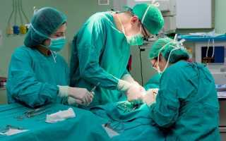 Виды операций при варикоцеле: особенности
