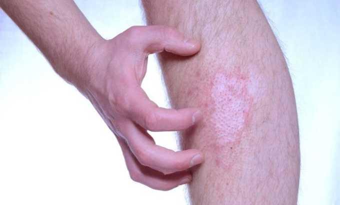 Процедуру следует обязательно пройти, если появился зуд, красные пятна на кожном покрове ног при низких температурах