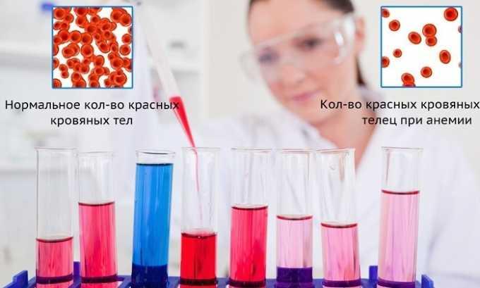 Токоферола ацетат используют при анемии неуточненного генеза
