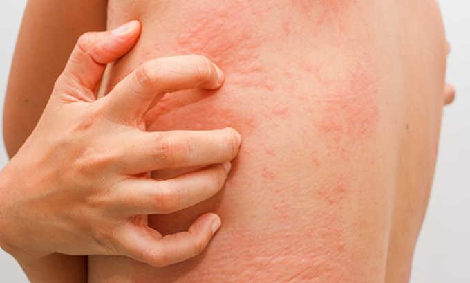 Аллергические реакции могут появляться как зудящая кожная сыпь и крапивница