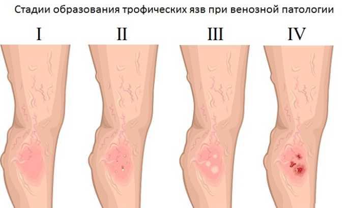 Флеболог также лечит трофические язвы ног