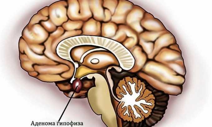 Лекарство способствует уменьшению размеров опухоли при аденоме гипофиза