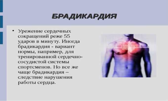 При передозировке препаратом может возникнуть брадикардия