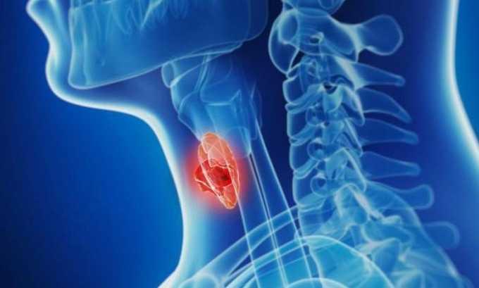 Средство помогает при тиреотоксикозе неуточненном