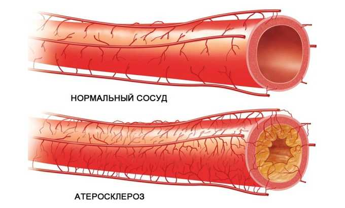 Сермион 10 принимается при церебральном атеросклерозе