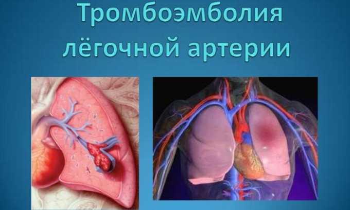Препарат назначают при тромбоэмболии легочной артерии