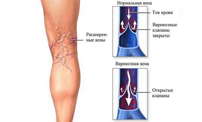 Назначение лекарства является обоснованным при варикозе ног