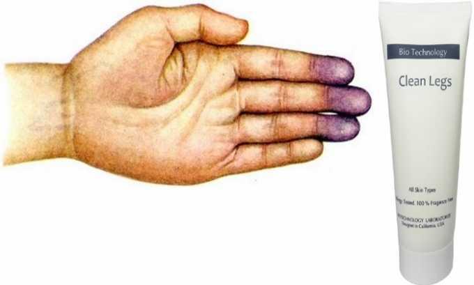 Медикамент показан при синюшном цвете кожи