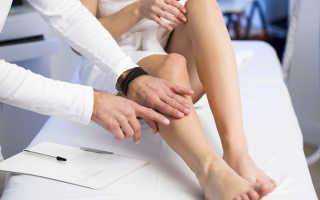 Симптомы и лечение тромбофлебита глубоких вен нижних конечностей