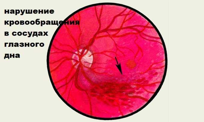 Нарушение кровообращения в сосудах глазного дна лечатся при помощи Пентоксифиллина