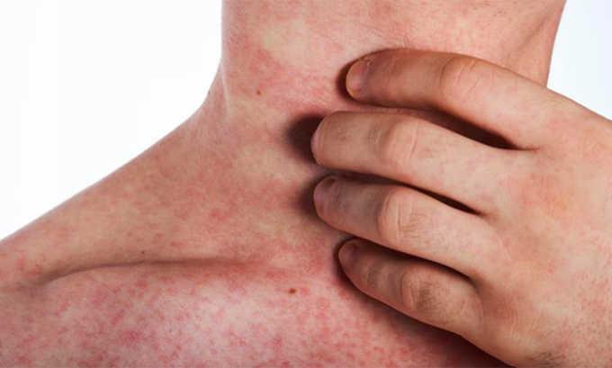При использовании медикамента может наблюдаться следующая побочная симптоматика-сыпь и зуд