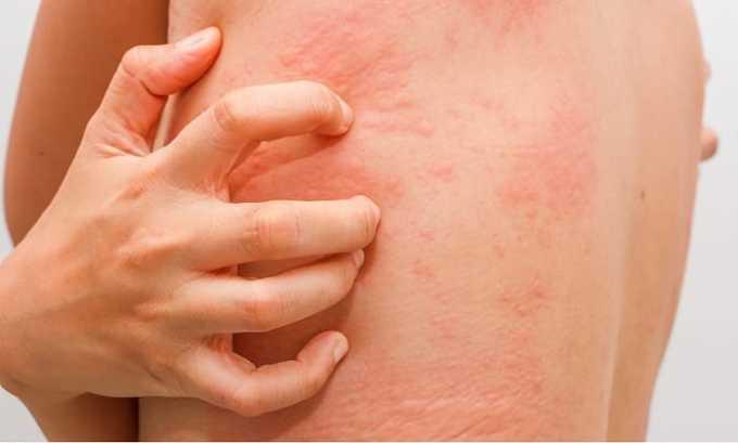 Аллергическая реакция на препарат проявляется крапивницей