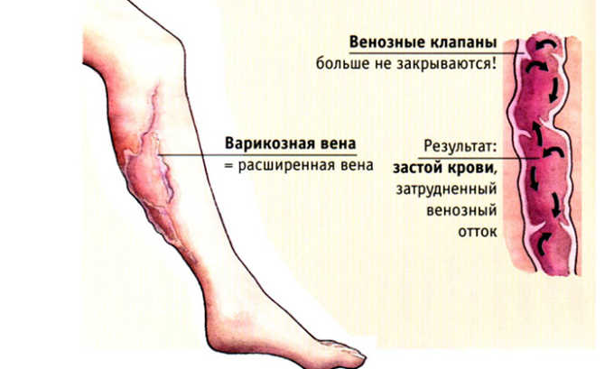 Кардиомагнил показан при варикозе
