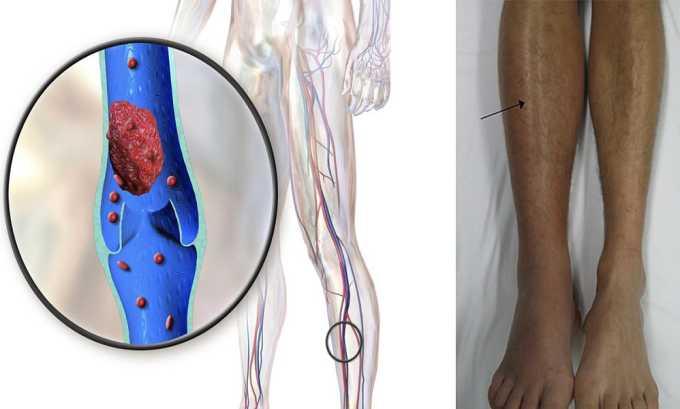 Профилактика образования тромбов в венах и артериях - показание к применению препарата Курантил
