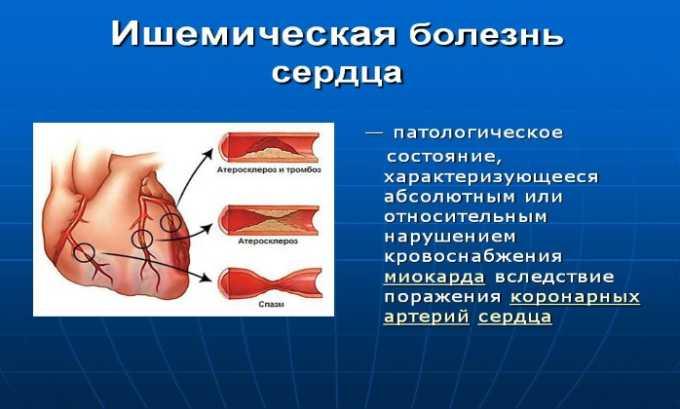 Препарат используют при ишемической болезни