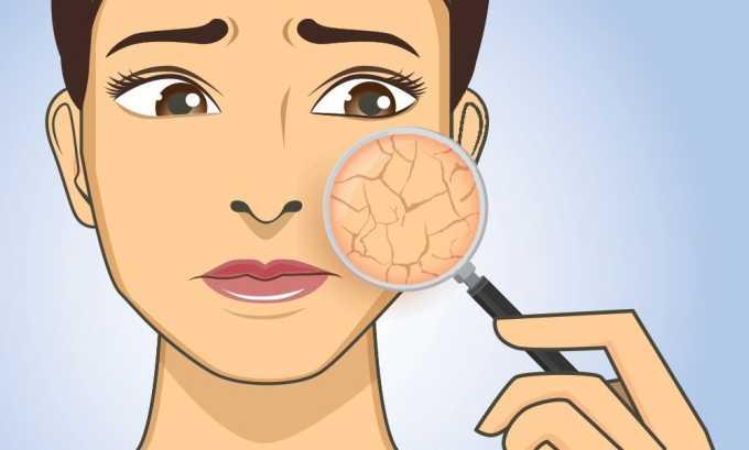 Применение Гепарина Акрихин может вызвать сухость кожных покровов