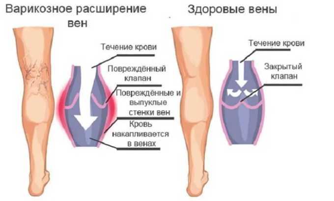 Развитие воспаления кожных покровов, связанного с варикозным расширением вен, может происходить по нескольким причинам, но все они имеют один корень — ухудшение кровообращения, что провоцирует отток крови к ногам