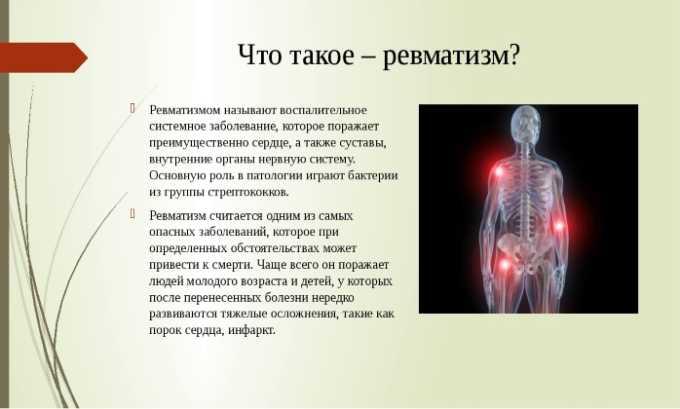Лекарственное средство применяют при дегенеративных формах ревматизма