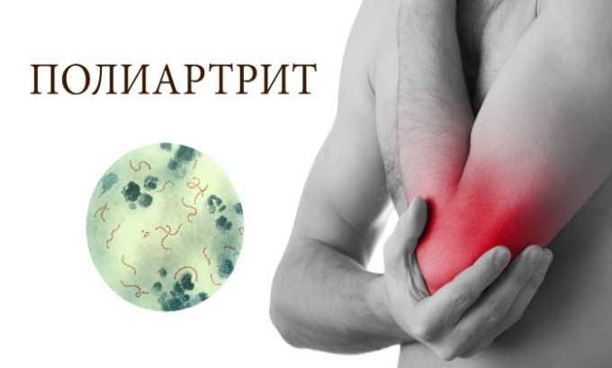 Лекарственное средство применяют при полиартрите в хронической форме