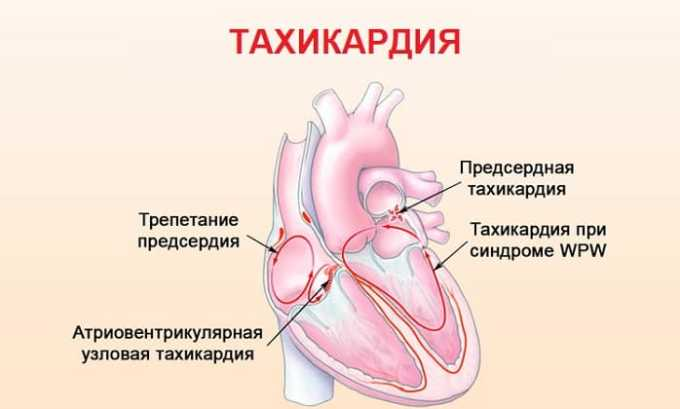 Побочные действия Антитромбина 3 проявляются в виде тахикардии