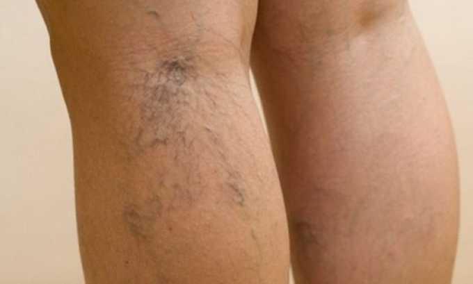 Регулярное применение средства помогает избавиться от сосудистых звездочек на ногах