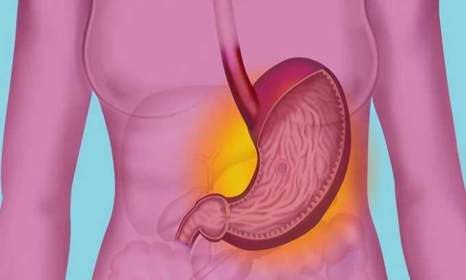 Следует отказаться от лечения Гинкго Билоба Форте при обострении язвы и гастрита