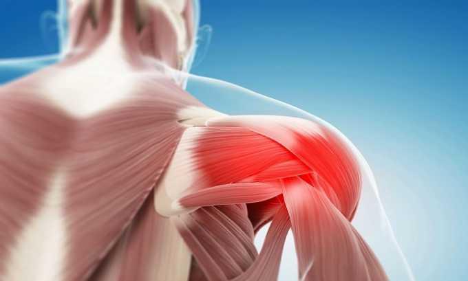 Мышечные боли - одно из показаний к применению препарата