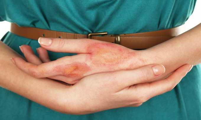 Препарат используют в лечении ожогов