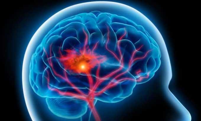 Раствор не назначают при внутричерепных сосудистых аневризмах