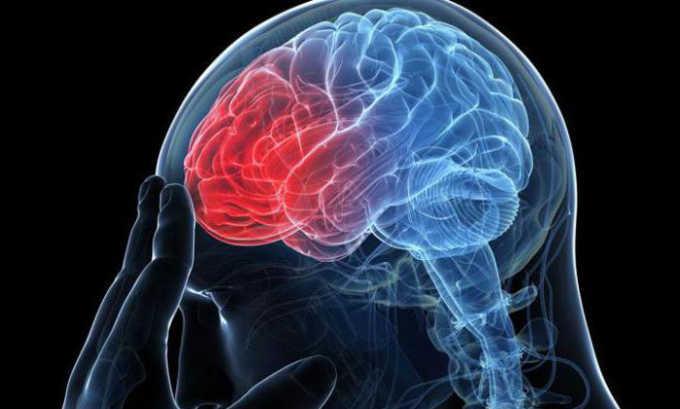 Препарат Трентал 100 используют для лечения состояния после перенесенного инсульта головного мозга