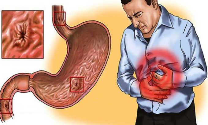 При наличии в анамнезе язвенной болезни желудка и двенадцатиперстной кишки лекарство применяется только под наблюдением врача