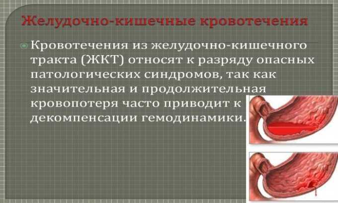 Побочные действия от препарата проявляются в виде желудочно-кишечного кровотечения