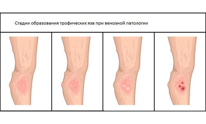 Эффективен препарат в лечении трофических язв на кожном покрове