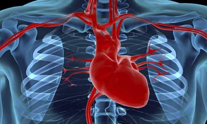 Препарат назначают при сбое функционирования сердечной мышцы при ИБС