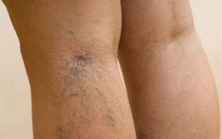 Симптомы варикоза на ногах у мужчин и методы его лечения
