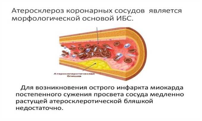 Необходимо соблюдать осторожность при назначении медикамента на фоне атеросклероза коронарных сосудов